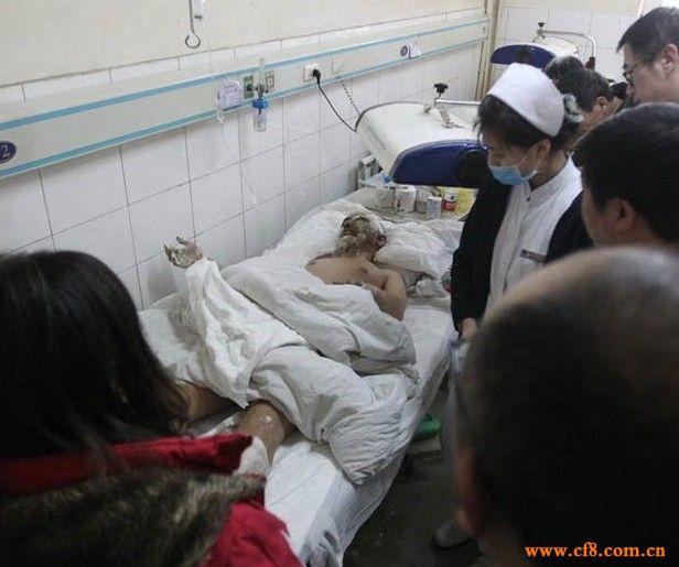 鞍钢喷爆事故受伤工人接受采访